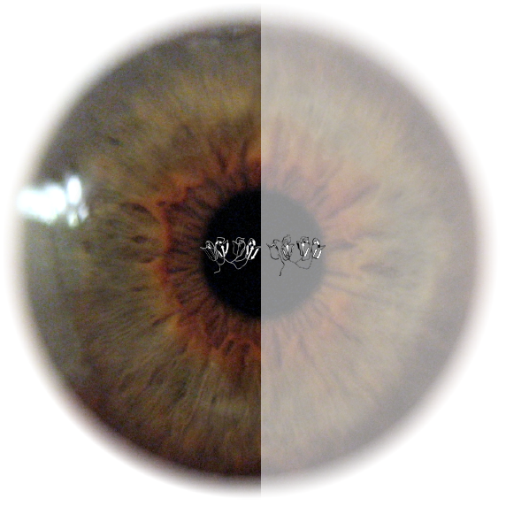 Cataract Research - 2